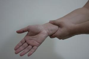 Ganglion na zápěstí je možné odstranit odsátím nebo vyříznutím