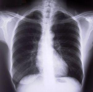 Fotka rentgenu hrudní páteře