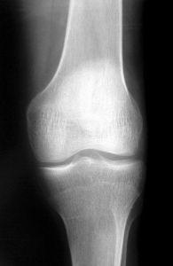 Rentgenová fotka kolene
