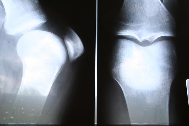 Operace menisku