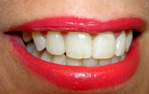 Ženská ústa napadená kvasinkovou infekcí