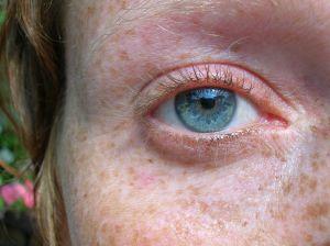 Ženské oko s piham okolo