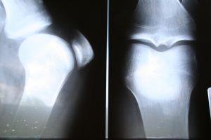 Fotka rentgenu kolene ze dvou stran.