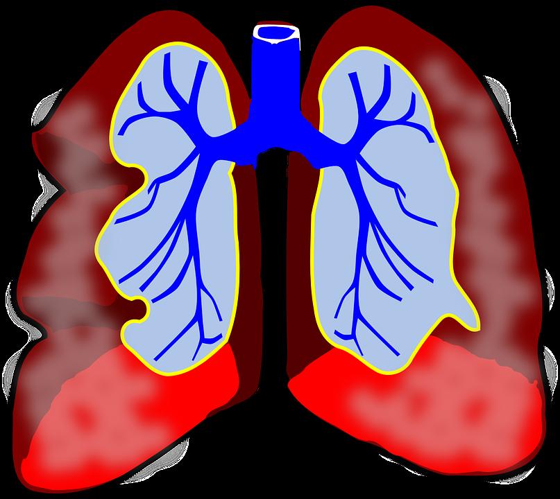 Při astmatu dochází k postižení průdušek.