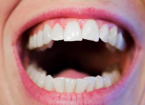 ustupující dásně